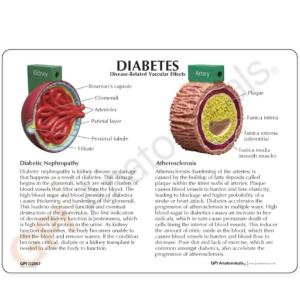 GPI Anatomicals® 4-Piece Diabetes