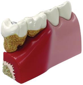 GPI Anatomicals® Basic Teeth Model