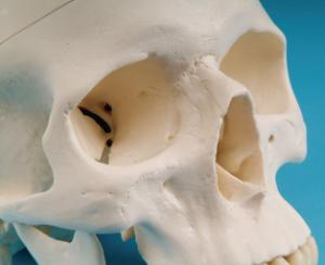 3B Scientific® Skull With 5 Part Brain