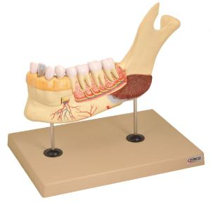 Eisco® Dissectable Jaw And Teeth Model