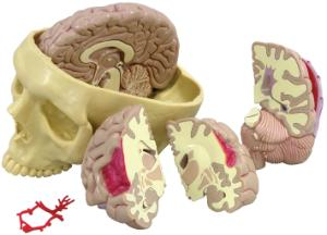 Brain in Skull Pathologies Model