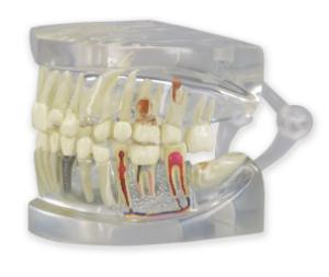 GPI Anatomicals® Clear Human Jaw with Teeth