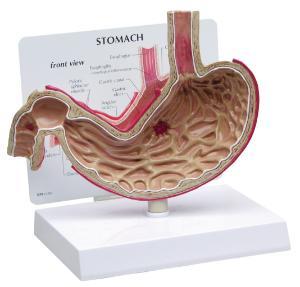 GPI Anatomicals® Basic Stomach Model