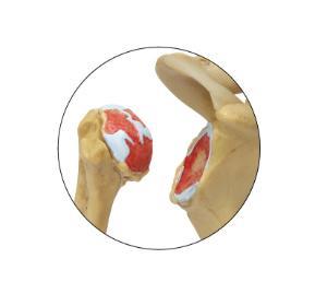 GPI Anatomicals® Osteoarthritis Stages