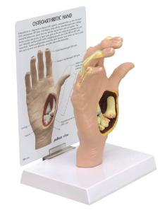 GPI Anatomicals® Osteoarthritis Hand